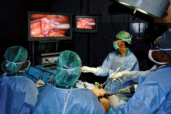 3D LAPROSCOPY SURGERY