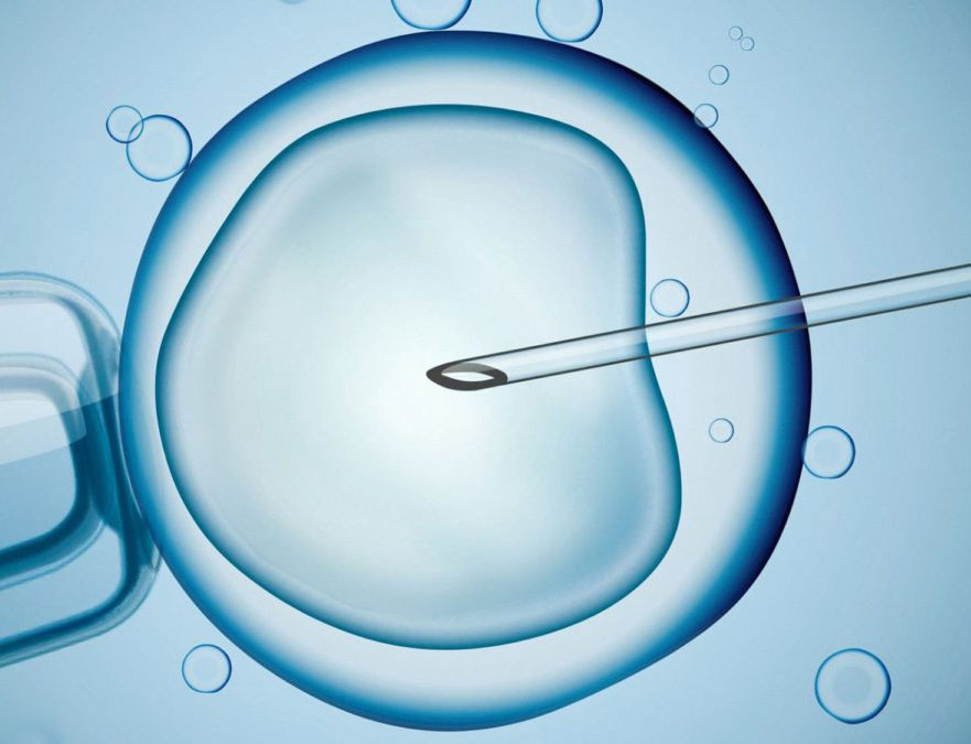 sperm donation center in ahmedabad